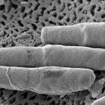 El azúcar añadido en los alimentos aumenta la virulencia de las superbacterias